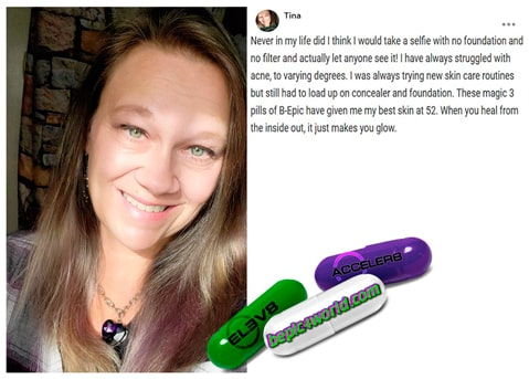 Tina writes about using 3 pills of BEpic