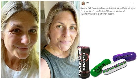 Sarah writes about REJUVEN8 serum of B-Epic