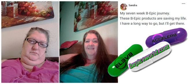 Feedback of Sandra about B-Epic products