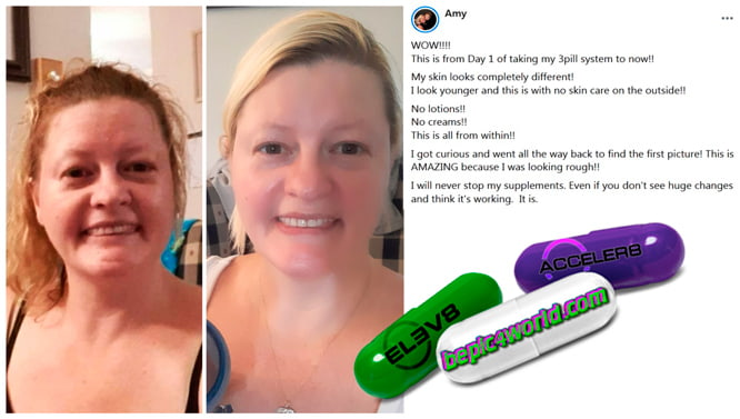 Amy writes about 3 pill system BEpic