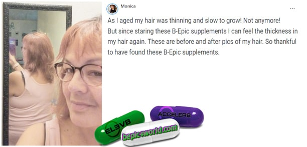 Feedback of Monica about the benefits of B-Epic-supplements for hair health