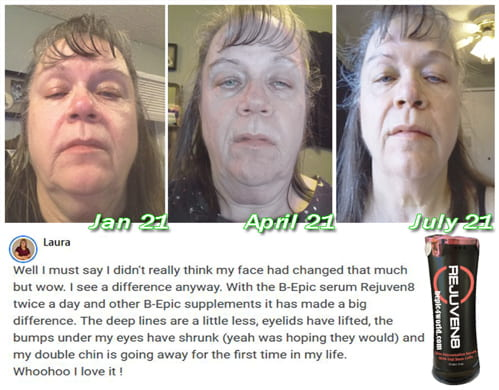 Review of Laura about the benefits of Rejuven8 serum by B-Epic