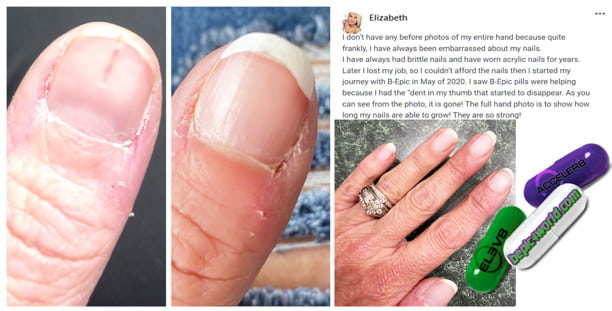 Elizabeth writes about the benefits of B-Epic pills for nail health