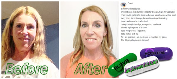Carol writes about the B-Epic 3 pill system and its health benefits